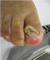 足趾切断や足趾の皮膚損傷患者への体重負荷回避の工夫