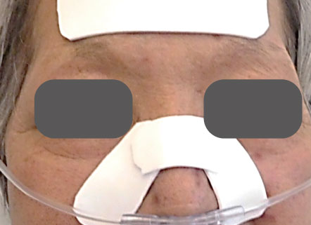 NPPVマスクによる圧迫の軽減