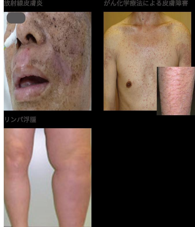 がん治療における皮膚の脆弱性