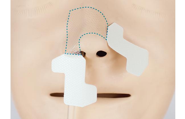 上手な経鼻チューブの固定方法(はな)|クリアホールド貼り方・はがし方ガイド(写真・動画付き)の画像