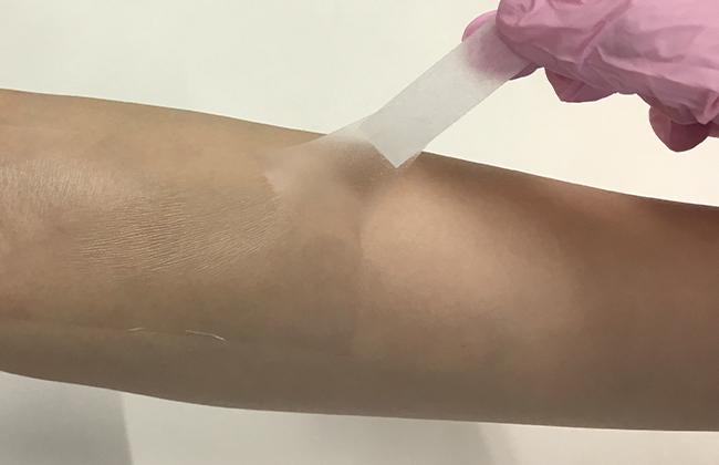 医療用テープを上から貼って、一緒にはがす :2. ゆっくりと真上に持ち上げるようにサージカルテープを少しずつはがします。