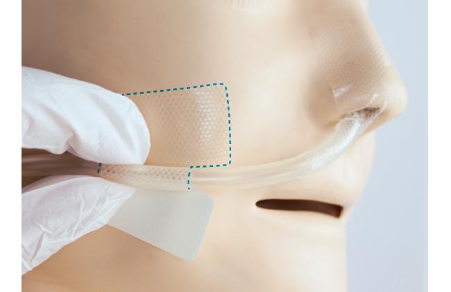 上手な経鼻チューブの固定方法(ほほ)|クリアホールド貼り方・はがし方ガイド(写真・動画付き)の画像