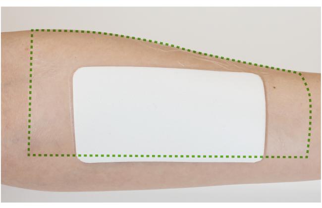 MDRPU対策中にココロールを貼ったまま観察する方法:貼り方2(エアウォールふ・わ・りを上から貼る)
