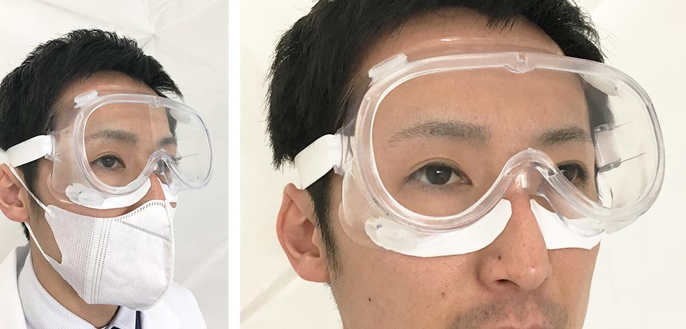 感染対策用のゴーグルで圧迫される頬のMDRPU予防